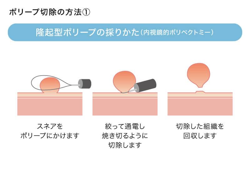 隆起型ポリープの採りかた(内視鏡的ポリペクトミー)