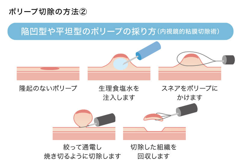 陥凹型や平坦型のポリープの採り方(内視鏡的粘膜切除術)
