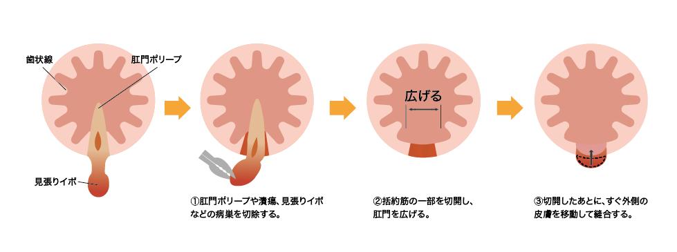 皮膚弁移動術
